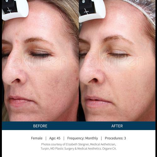 SkinPen-PhotoGallery-3